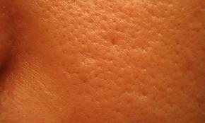 stora porer torr hy