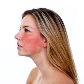 Hetta i ansiktet allergi